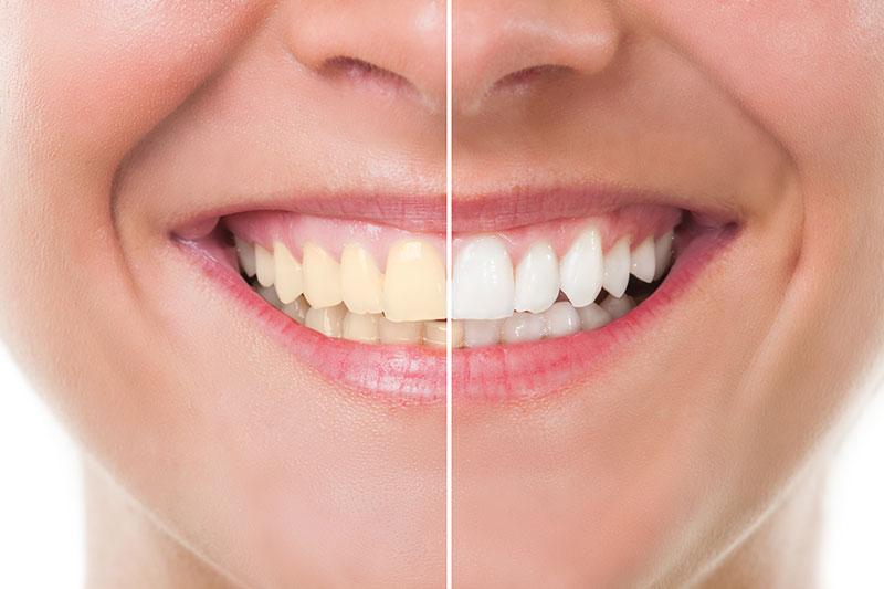 Premier Family Dental Dental Offer